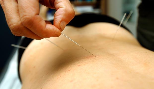 Soulagement des maux de dos par l'acupuncture