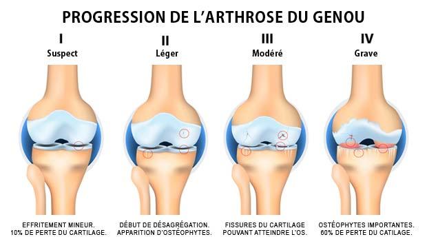 D'où provient l'arthrose?
