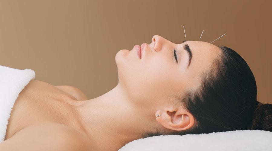 9 raisons de consulter un acupuncteur