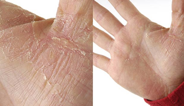 Atopitchesky la dermatite chez le nourrisson de la crème
