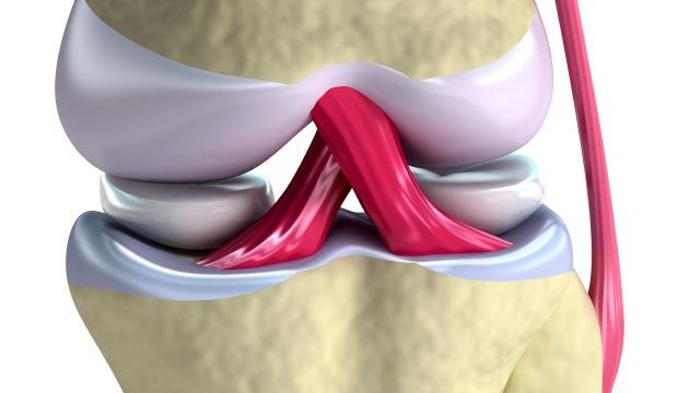 Rupture du ligament croisé antérieur (LCA)