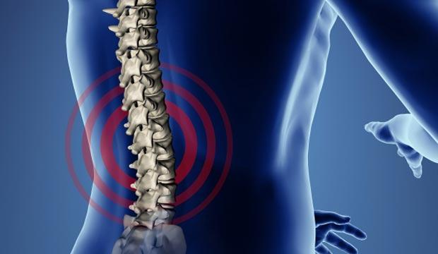 Les symptômes de la hernie discale