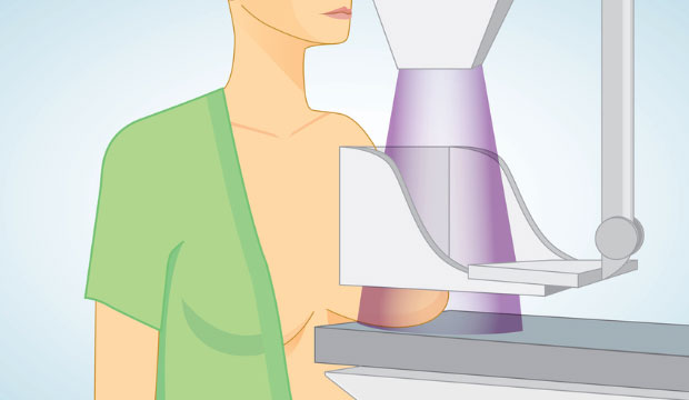 La mammographie