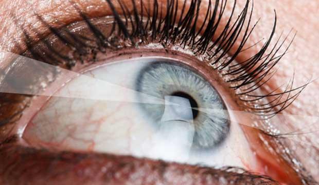 Correction de la vue au laser