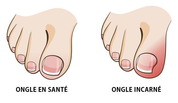 Prévenir et soigner un ongle incarné