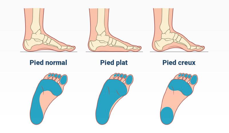 Avez-vous les pieds creux?