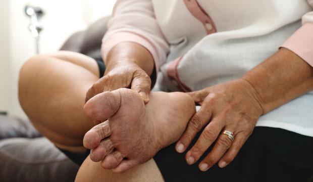 Le pied diabétique (neuropathie)