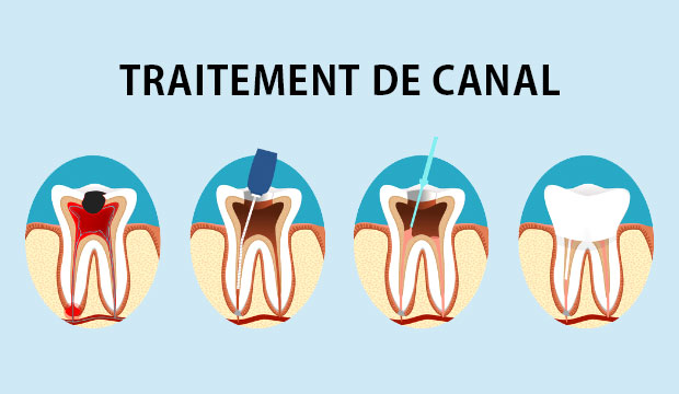 Qu'est-ce qu'un traitement de canal?