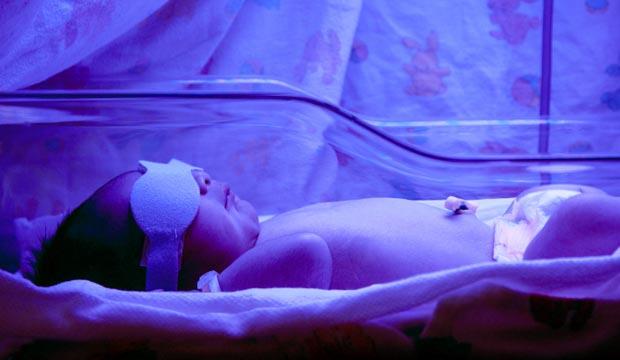 La jaunisse chez le nouveau-né