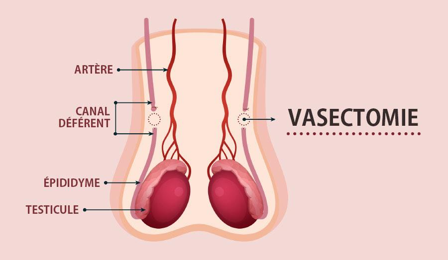 La vasectomie